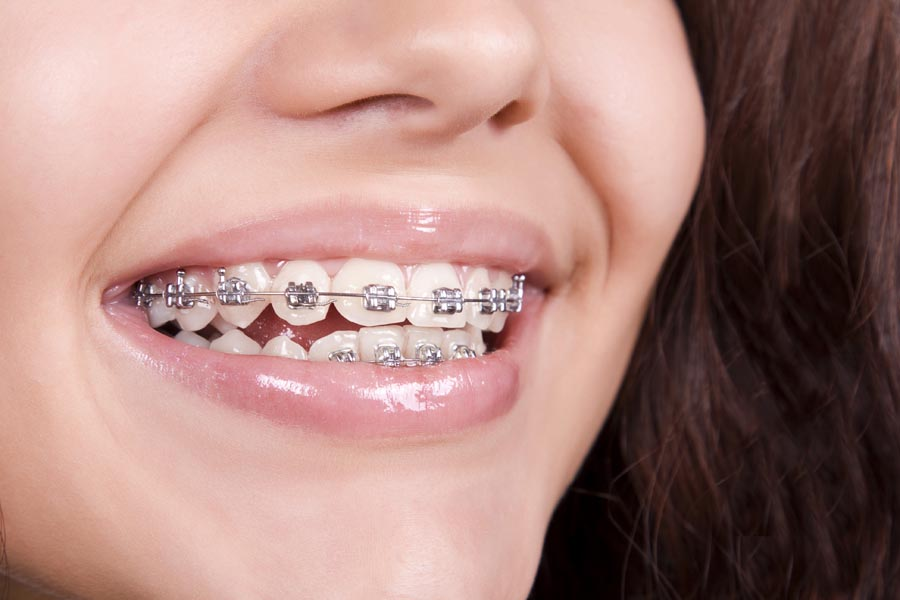Known benefits of getting dental braces fitted onto your teeth
