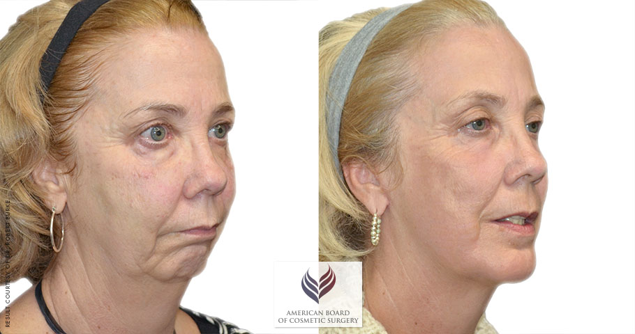 Thinking about having a face lift procedure? Make arrangements first