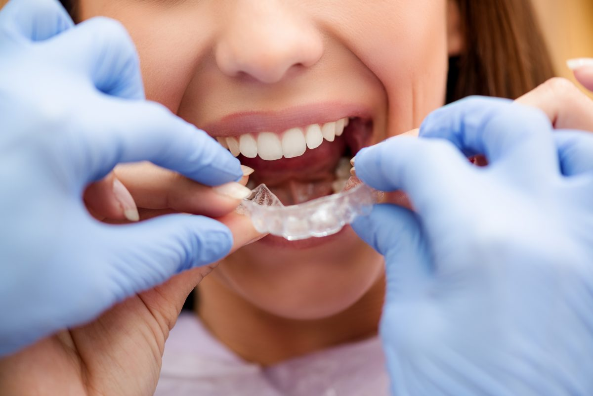 Select the best orthodontist with these tips